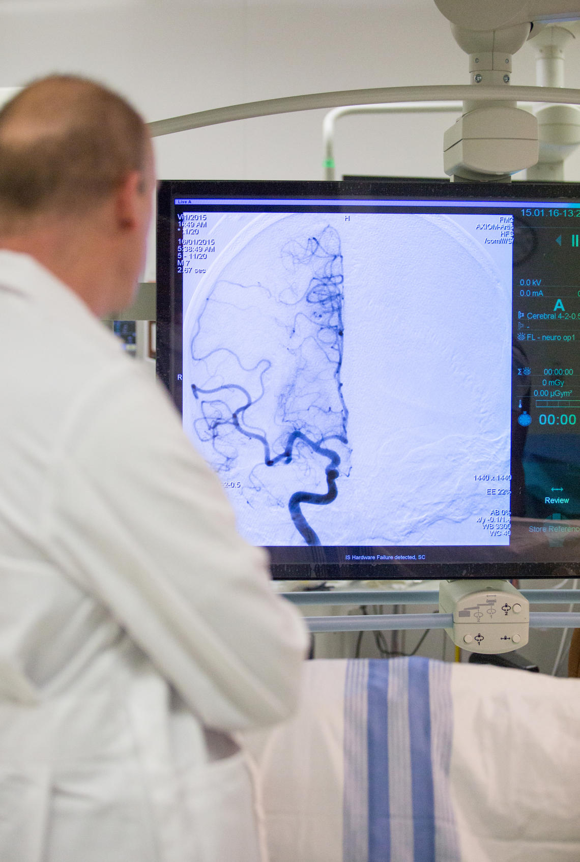 Dr. Michael Hill looks at an angiogram on a stroke patient.