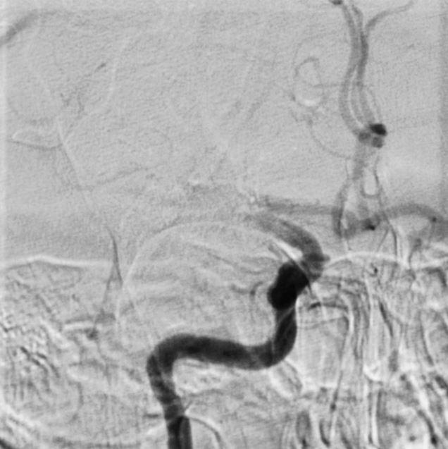 ET procedure: A tiny tube was put in through the groin and advanced to the vessels in the neck using X-ray guidance. Injection of contrast shows where the vessel is blocked off.
