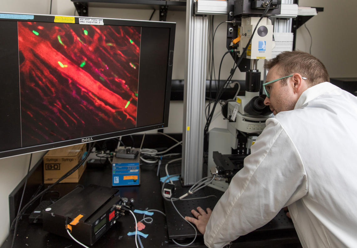 Justin Deniset uses live imaging microscopy to watch the cell as it travels through the heart.