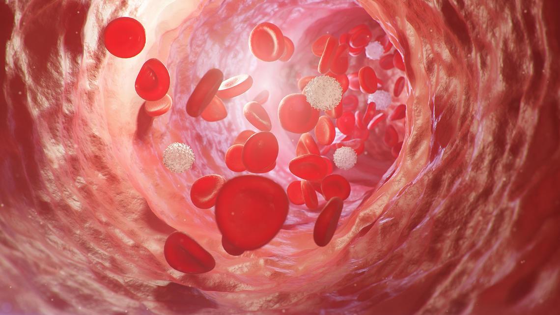 Plasma clinical trial