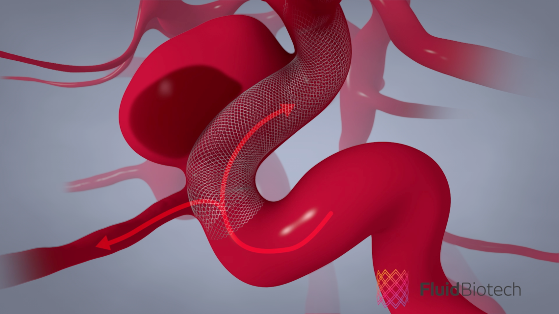 The Fluid Biotech stent is inserted in the blood vessel where the brain aneurysm has developed, and it diverts blood flow away from the aneurysm which allows it to heal.