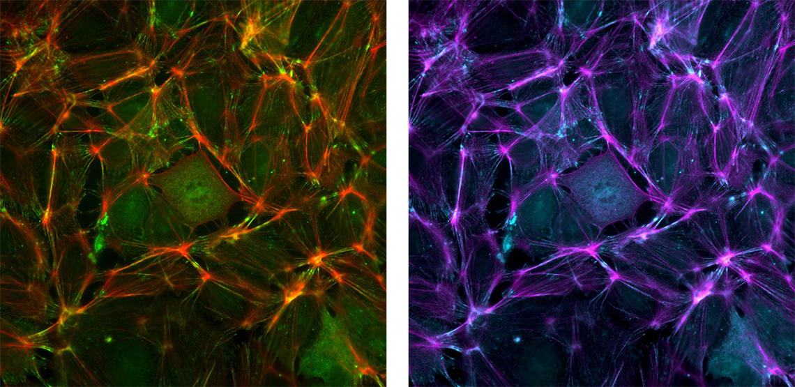 These are images of endothelial cells that line the blood vessels. The first uses standard red to label actin and green to label a focal adhesion protein. The second is the same image using magenta and cyan instead