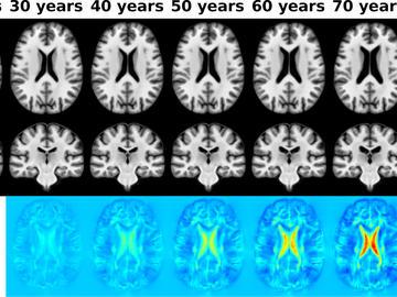 Brain age scan