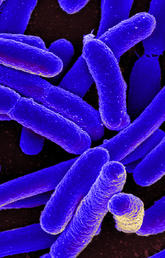 """Resistance to antibiotics is on the rise worldwide because of the overuse and misuse of medications, which can also lead to other health issues like drug toxicity or complications. """"Microbe"""" by NIAID via Foter.com is licensed under CC by 2.0."""