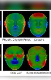 3d facial scans