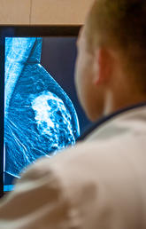UCalgary study finds global trends in women's breast cancer show cause for concern