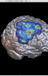 Researchers unlock the potential of an average MRI scan