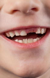 Calgary children's dental health getting worse without community water fluoridation